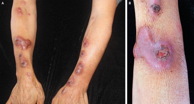 Інфекція на руках, фото: The New England Journal of medicine