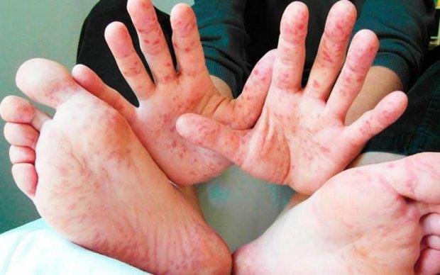 Смертельная болезнь косит киевлян, врачи сделали важное заявление