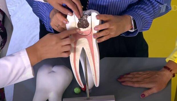 Болить зуб, а до стоматолога лише завтра? 5 народних способів полегшити страждання