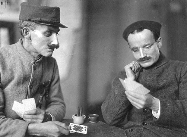Хто і як створював нові обличчя для солдатів у Першу світову війну: коли смерть – подарунок