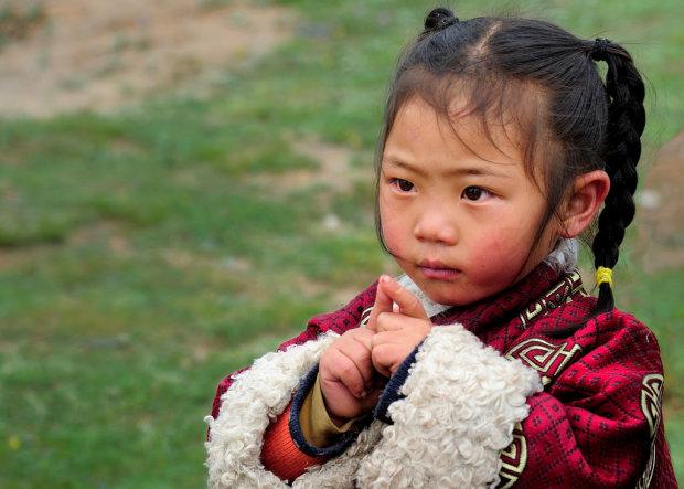 Батьки привели дівчинку з набряком на обличчі в лікарню. Медики виявили в її організмі незвичного паразита