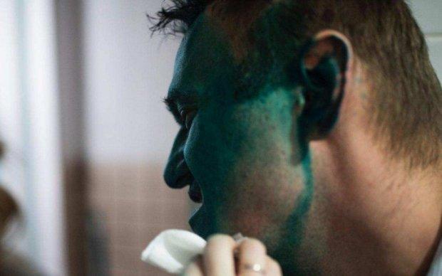 Слідом за Варламовим позеленів Навальний