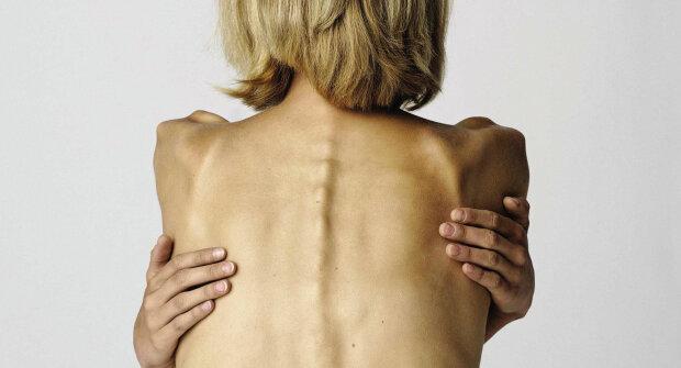 Смерть через одержимість схудненням: юна українка померла від анорексії