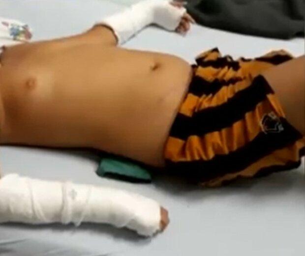 У Мукачеві школяр на фізкультурі переламав хребет, скріншот