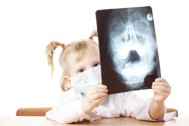 Доктор Комаровський розповів матусям, наскільки небезпечний для дитини рентген