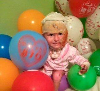 """Обірвалося життя маленького Артемка, який отримав сильні опіки, фото: фонд """"ВІРЮ У ДОБРО"""""""