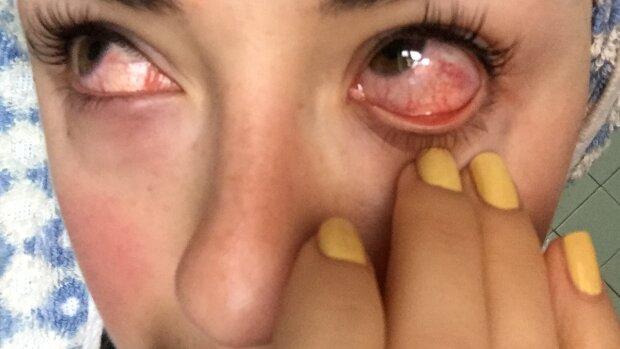 Залишилася без вій і ледь не втратила зір: дівчину госпіталізували після невдалої процедури в салоні краси
