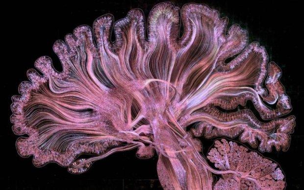 Мозок Ейнштейна підніс новий сюрприз
