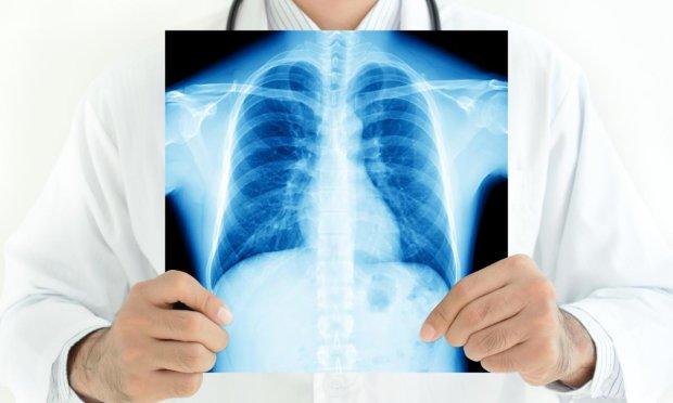 У Білорусі успішно протестованi ліки від туберкульозу