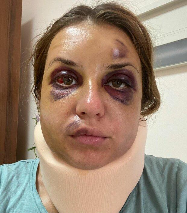Анастасия Луговая на 5 день после нападения, фото из ее Instagram