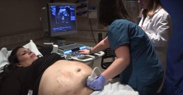 Беременная женщина была усеяна синяками, никто не понимал почему: правду раскрыло УЗИ