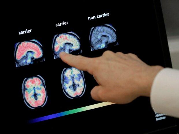 Хвороба Альцгеймера - більше не вирок: знайдено ліки, які подарують шанс мільйонам людей