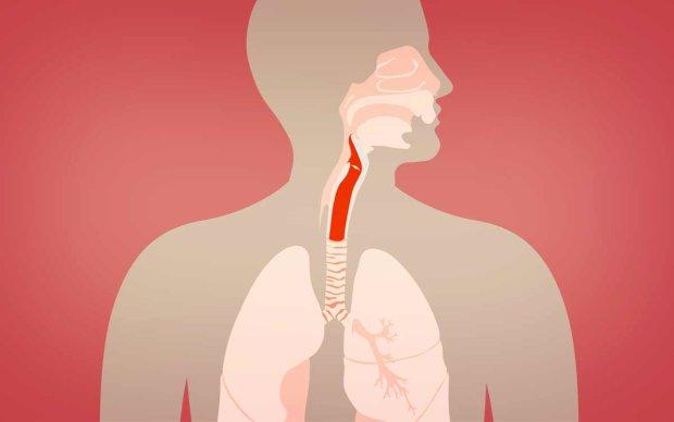 Хрипота, задишка, біль у горлі: як визначити рак горла, доки не стало пізно