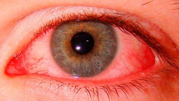 Олівцем в око: спливли нові подробиці моторошного інциденту в дитсадку Дніпра