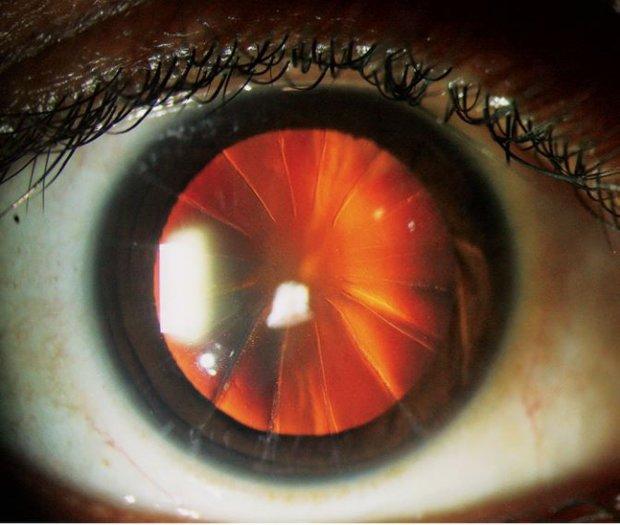 Жінка з зіницею-піцою: офтальмологи зіткнулися з непередбаченими наслідками старої операції