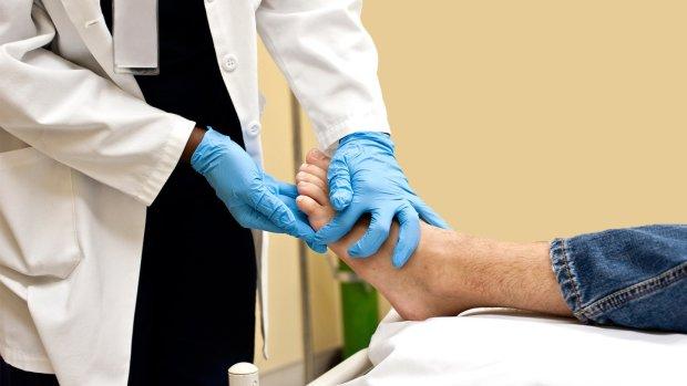 Медики перерахували шість причин страшної інфекції ніг: діабет, набряки і не тільки