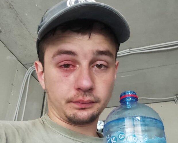 """Львовянин чуть не лишился зрения из-за популярной минеральной воды: """"Выстрелила прямо в глаз"""""""