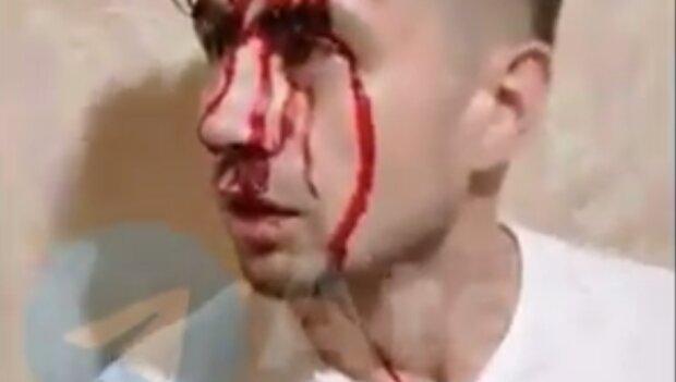 Постраждалий, скріншот з відео