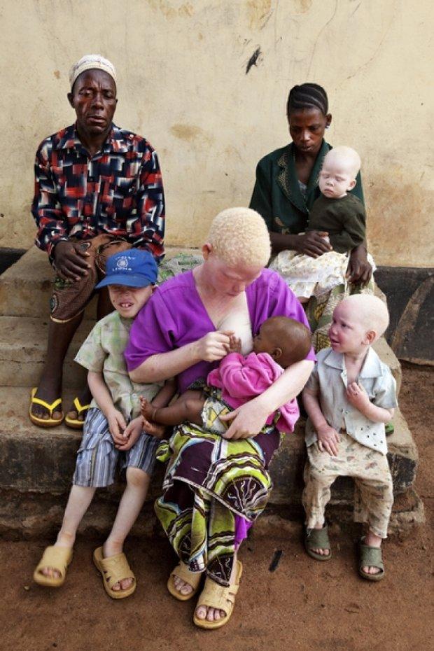 Вбивць альбіноса засудили на смерть у Танзанії
