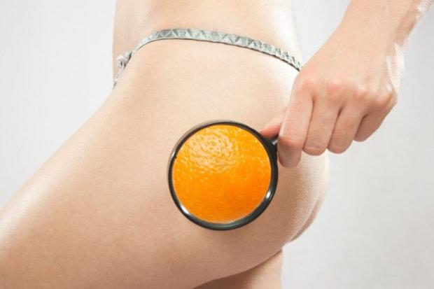 """Целюліт не спить: як боротися з """"апельсиновою кіркою"""" в домашніх умовах"""