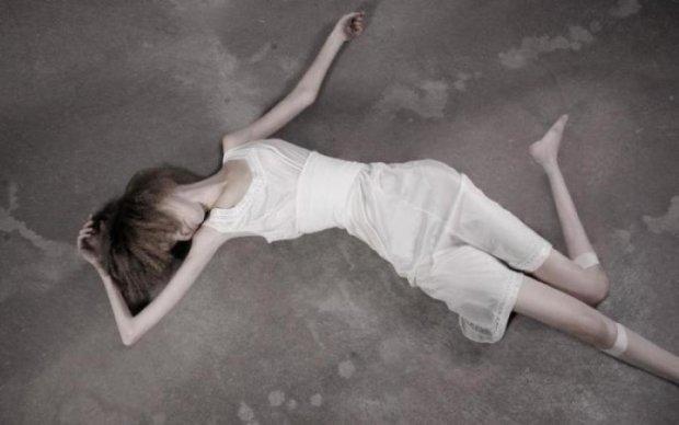 Мумія перетворилася на кулю: молода українка відчайдушно бореться з анорексією