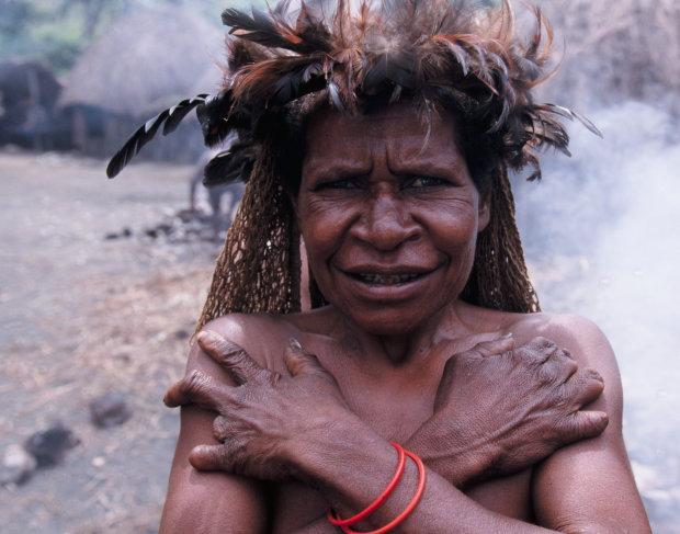 Племя беспалых: зачем индонезийские женщины калечат себя