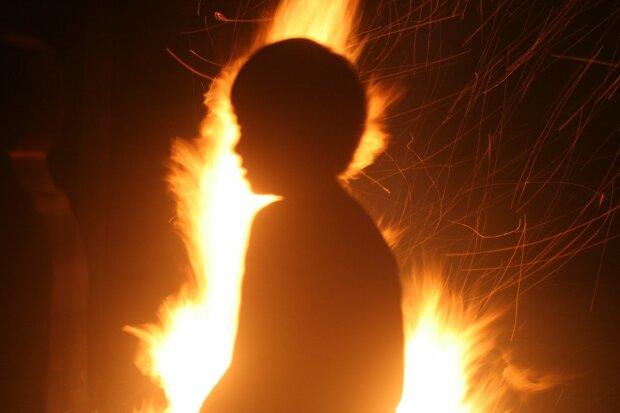 Игры детей с бензином закончились трагедией для 8-летнего Кирюши: все тело в ожогах, мать молит о помощи