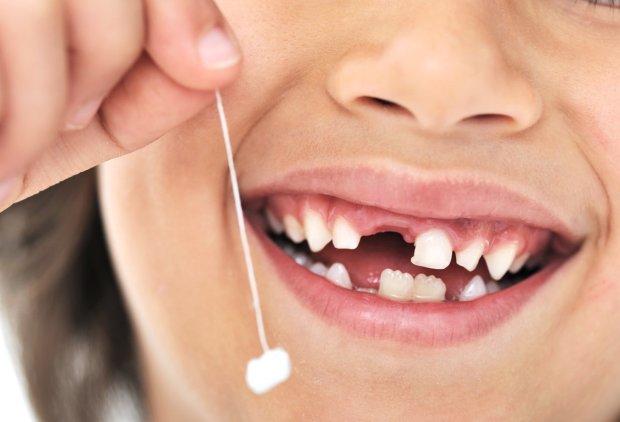 Не спешите выбрасывать молочные зубы детей: это может спасти жизнь