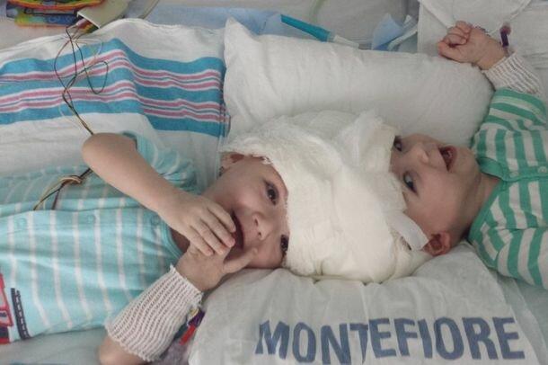 Медики разделили сиамских близнецов со сросшимися головами - как сейчас выглядят девочки
