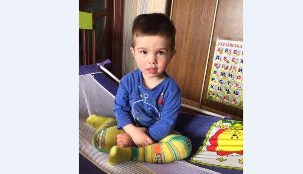 """Життя 2-річного Богданчика опинилося на волосині, батьки ридають: """"Вилетів з 4 поверху"""""""