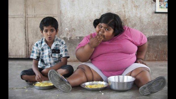 Ожиріння, задишка і несамовитий голод: трагічна історія найбільших дітей у світі, яка зачепить кожного