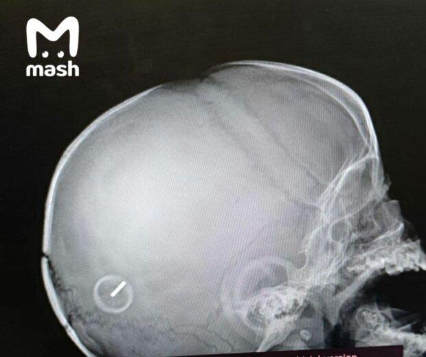 Рентген постраждалої дитини, фото: Mash