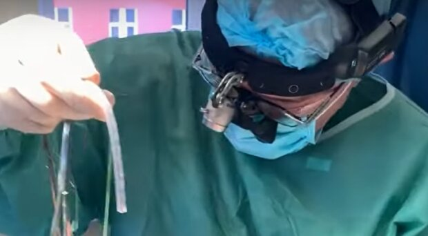 Операция, кадр из видео, изображение иллюстративное: YouTube