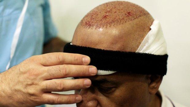Бізнесмен задихнувся після пересадки волосся: таємнича смерть спантеличила фахівців по всьому світу
