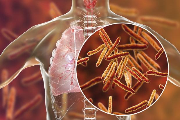 Грудна хвороба: знайдено раніше невідомий фактор ризику