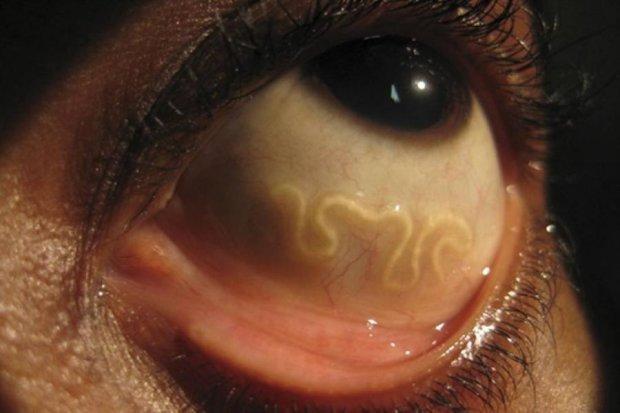 Паразиты в глазах уничтожают зрение