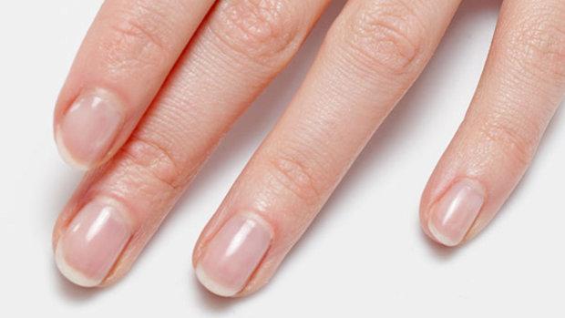 Что означают белые полосы на ногтях